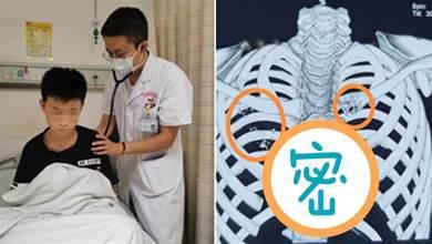 12歲童愛熬夜滑手機!鎖骨長鳥蛋大腫瘤,醫一驗「末期了」媽媽哭訴:都怪我們!