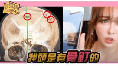 雪碧公開「花4百萬整形過程」,曝最痛手術…「頭皮整片」翻開墊矽膠!
