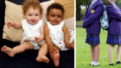 100萬分之1「黑白雙胞胎」長大了! 11歲「一個像公主一個像男孩」媽媽苦笑:完全沒人信