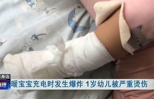 暖暖包爆炸!1歲兒燙傷送醫